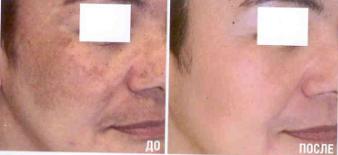 пиллинг котроль пигментации кожи