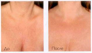 Коррекция возрастных изменений кожи в области декольте скинбустерами Restylane