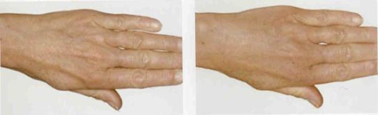 омоложение кожи рук (до и после)