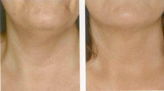 омоложение шеи (до и после)