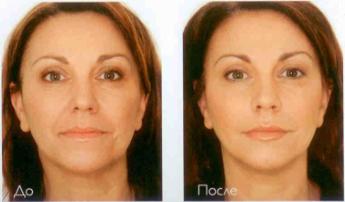 коррекция морщин (Restylane) (до и после)